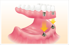 インプラントの症例 【歯が全くない場合】
